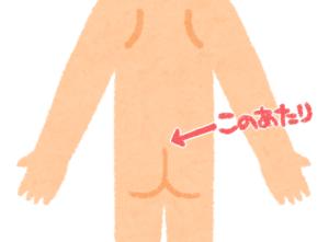 毛巣洞は尾てい骨に出来る炎症です